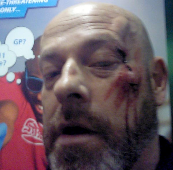 Man injured in unprovoked attack on Brighton Seafront