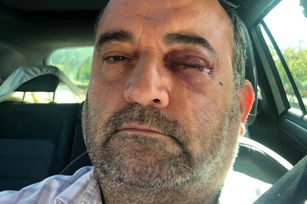 Man left with fractured eye socket after attack in Birmingham's Gay Village
